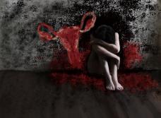 Endometriose depression